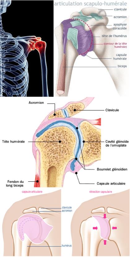 capsulite tendinite epaule gelee guillaume busnel osteopathe vallauris golfe juan les pins